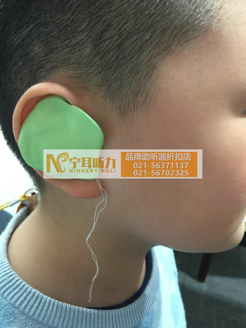上海哪有卖奉贤儿童助听器的