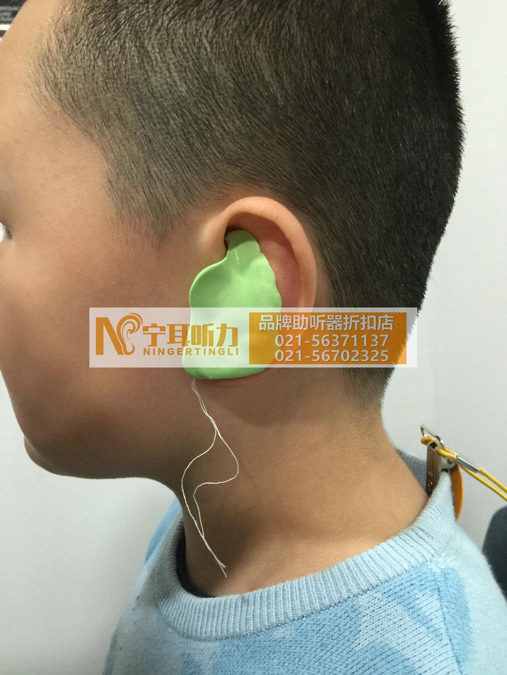 上海奉贤儿童助听器多少钱